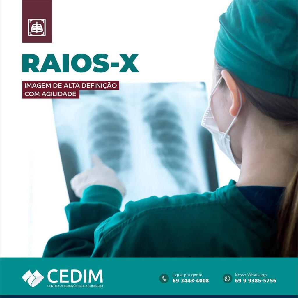 Exame de Raios-X